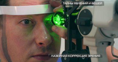Лазерная коррекция | Фото: chudo.tech
