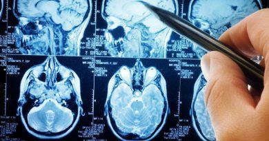 Исследование головного мозга | Фото: likarni.com
