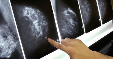 маммография | Фото: knpr.org